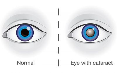 August is Cataract Awareness Month!